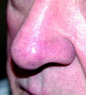 Facial Telangiectasia